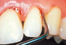 parodontoza liječenje