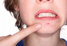 kako nastaju akne