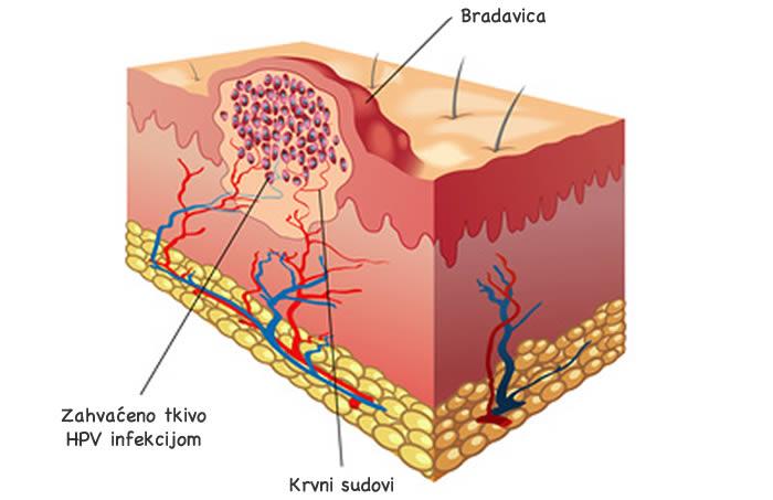 Anatomija bradavice, izrasline na tijelu