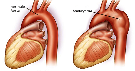 Aneurizma aorte kod srca