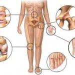 Šta je artritis, i kako ga liječiti?