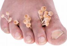 gljivice između nožnih prstiju
