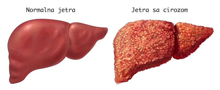 Normalna jetra i jetra sa cirozom ilustracija