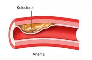 naslaga kolesterola