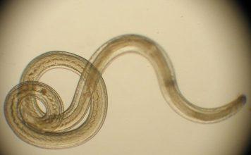crijevni paraziti, gliste, prirodno liječenje