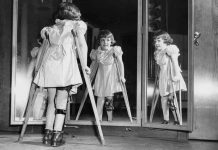 dječja paarliza - polio