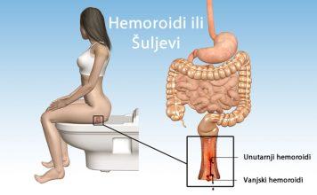 Prirodno liječenje hemoroida ili šuljeva