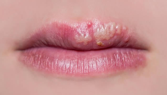 Hespes Simpleks Virus - Herpes na usni