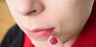 kako se riješiti herpesa