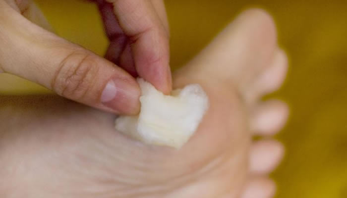 Bradavice na stopalu - Prirodni lijek za bradavice