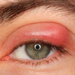 trahom, nateklo oko, liječenje