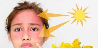 Opekline od sunca na licu