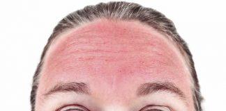 Opekotine od sunca liječenje