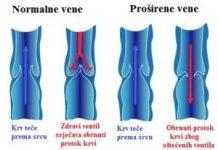 proširene vene