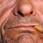 pušački rak