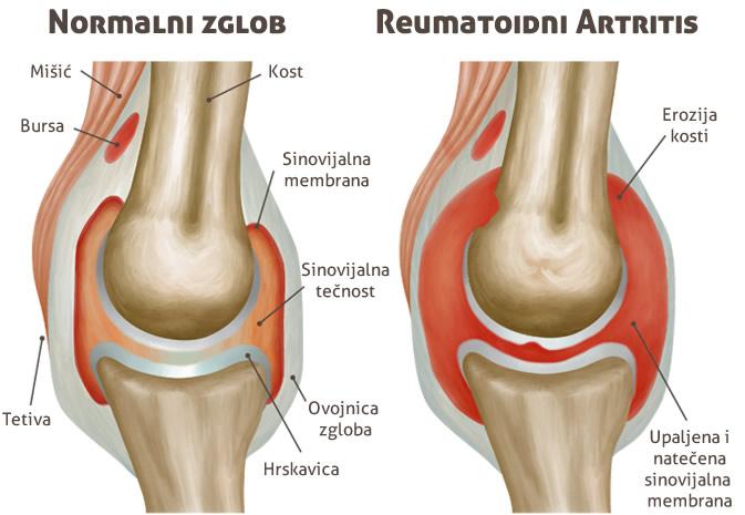 reumatoidni artritis zglobovi