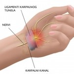 liječenje sindroma karpalnog tunela