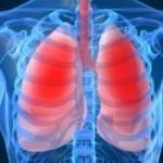Biljke za borbu protiv upale pluća