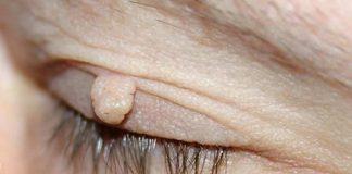 Viseće bradavice na očnom kapku