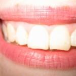 PREGLEDAJTE SE ODMAH: Promjene na zubnom mesu mogu ukazivati na opasne bolesti!