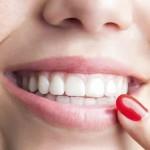 izbjeljivači zuba