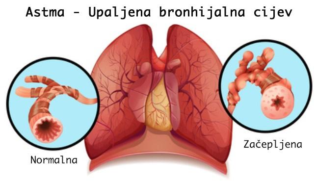 Astma - upaljena bronhijalna cijev