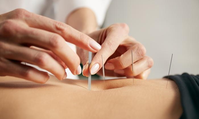 kako se radi akupunktura