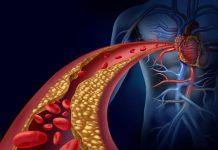 arterije