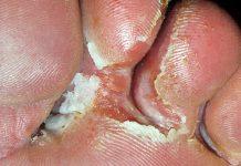 Gljivice na stopalima