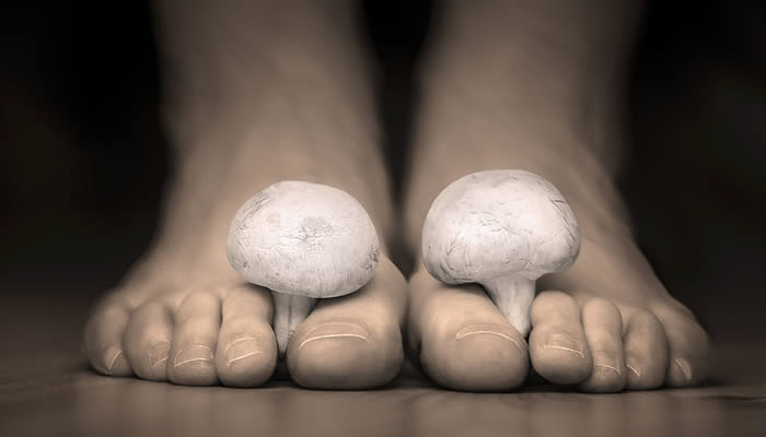 Atletsko stopalo i Gljivice na stopalima