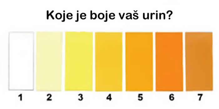 Boja urina - Boja mokraće