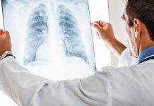 liječenje bolesti pluća