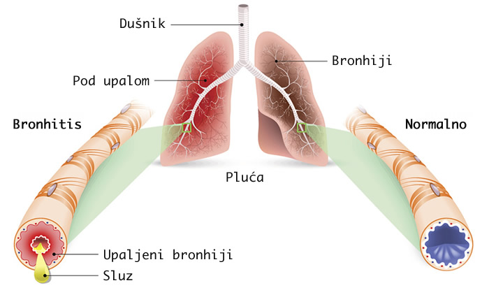 začepljeni bronhiji - bronhitis i normani bronhiji