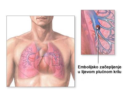 začepljenje pluća