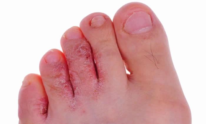 Gljivice na nožnim prstima