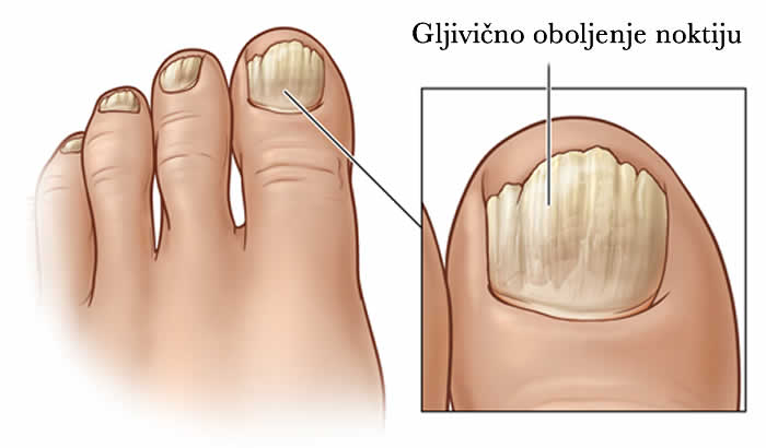 Gljivično oboljenje noktiju