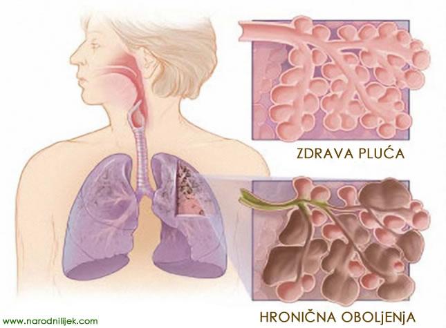 hronična-oboljenja-pluća
