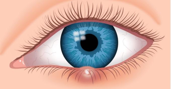 kako liječiti ječmenac na oku