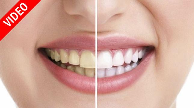 kako izbijeliti zube