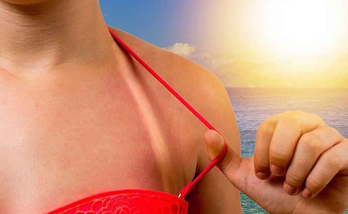 kako liječiti opekline od sunca