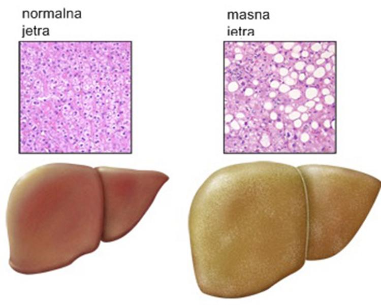 masna jetra liječenje
