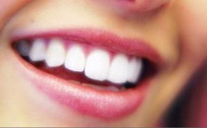 osmijeh