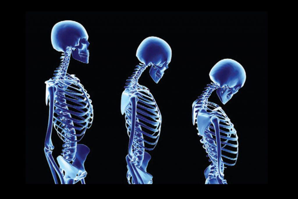 osteoporoza liječenje