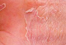 ljuštenje kože