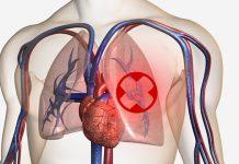 plućna embolija - začepljenje plućnih aterija