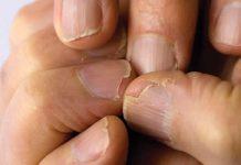 Pucanje noktiju - Lomljivi nokti