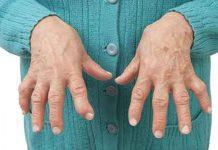 Poliartritis
