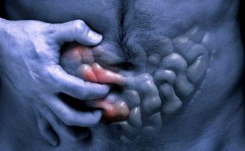 gorušica,simptomi raka