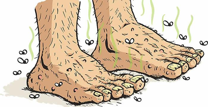 Smrad nogu - Neugodan miris nogu