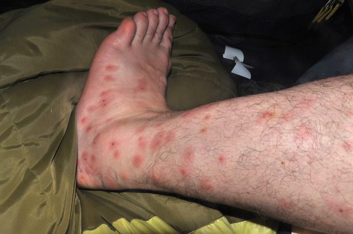 ujed komarca